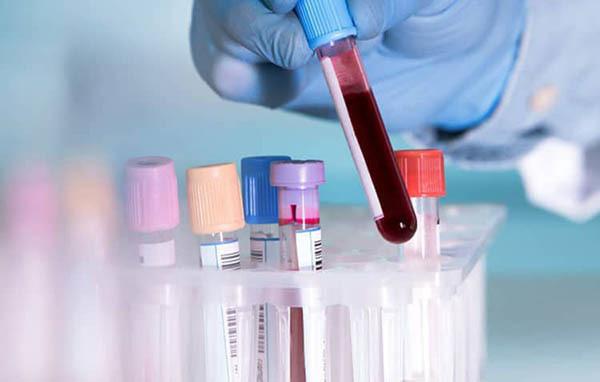 Xét nghiệm máu phát hiện bênh lupus ban đỏ