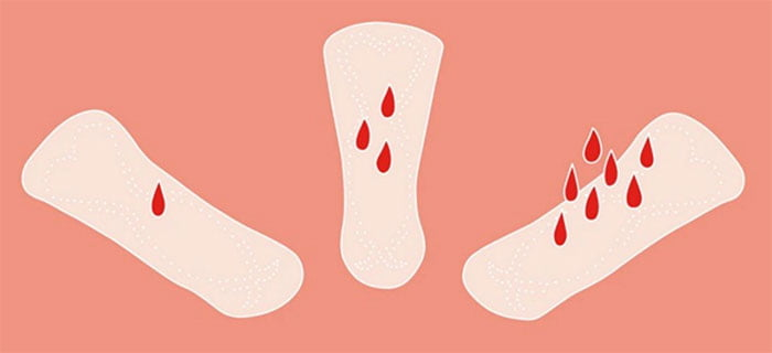 Lượng kinh nguyệt ra không đều là một trong những triệu chứng thường thấy